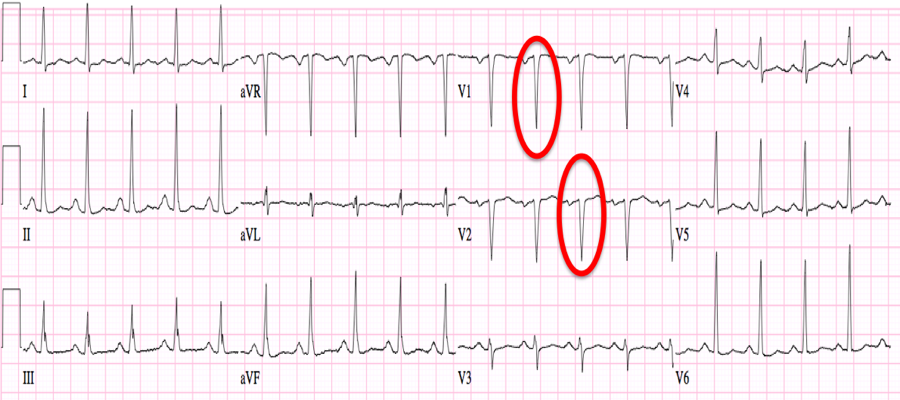 Heart Attack: Q Wave Heart Attack