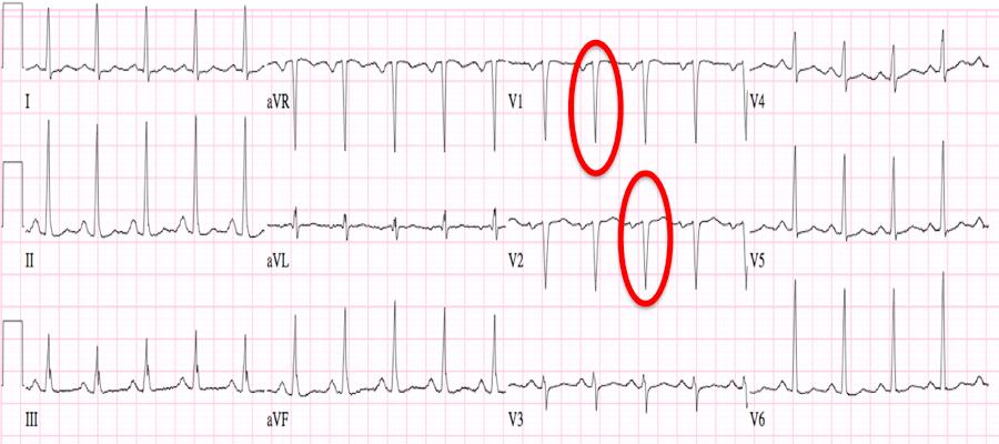 Pathological Q Wave | www.pixshark.com - Images Galleries ...
